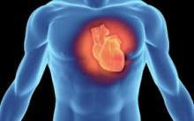 supravietuieste infarctului